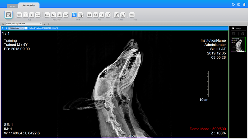 Latest Digital X-ray Project Completed in Washington